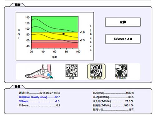 骨密度仪诊断参数
