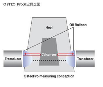 osteopro测定概念图